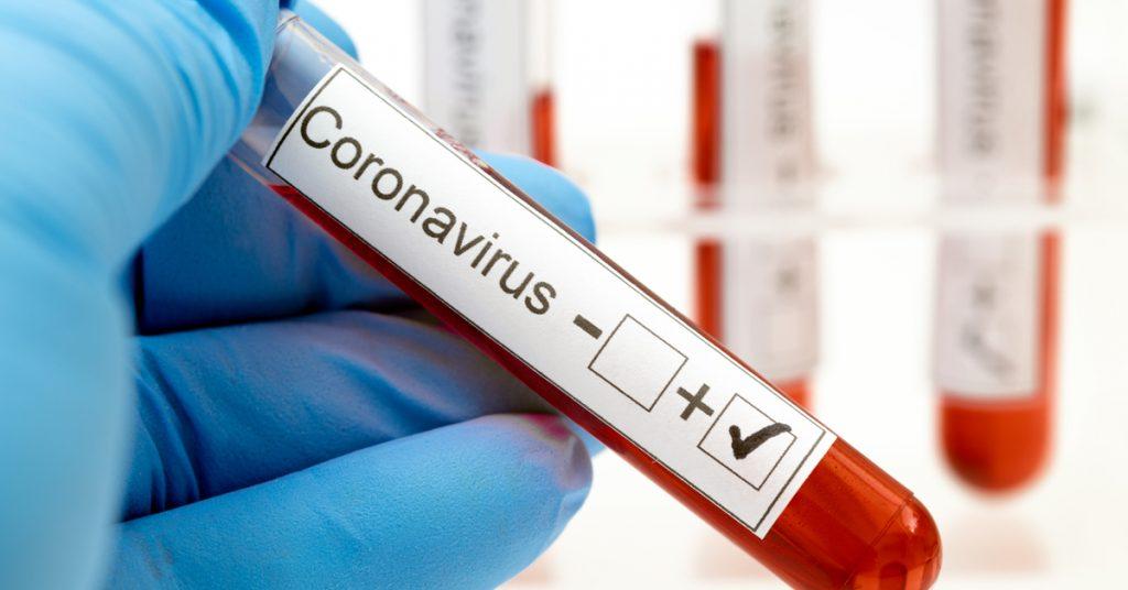 4º caso de covid-19 é registrado em Rio Azul